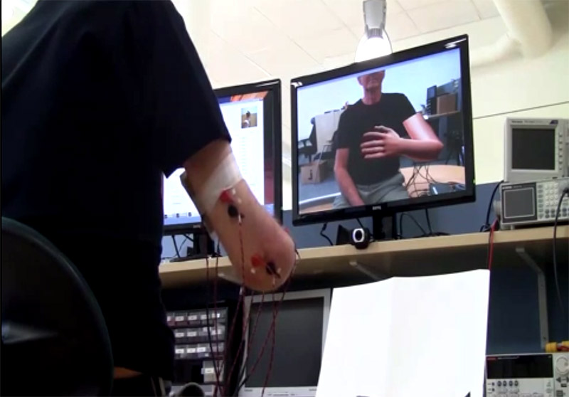 An amputee in Sweden tests a virtual reality game that can remove Phantom Limb pain