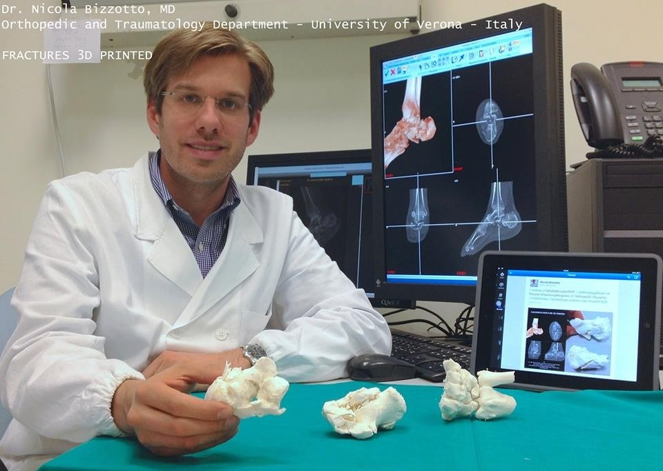 Dr Nicola Bizzotto and his 3D-printed bon