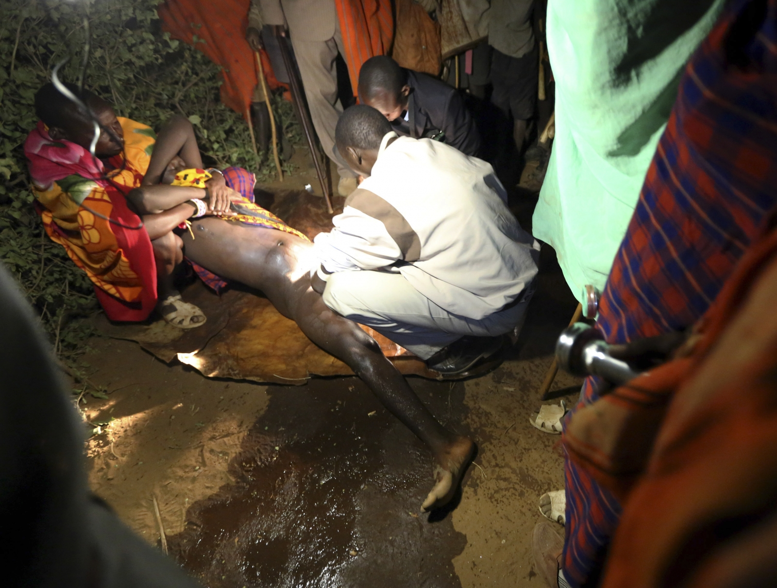 young Masai boy is circumcised by a male nurse during an initiation ...