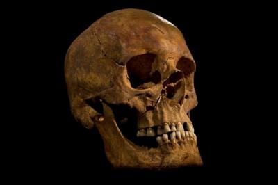 The skull of Kind Richard III (University of Leicester)