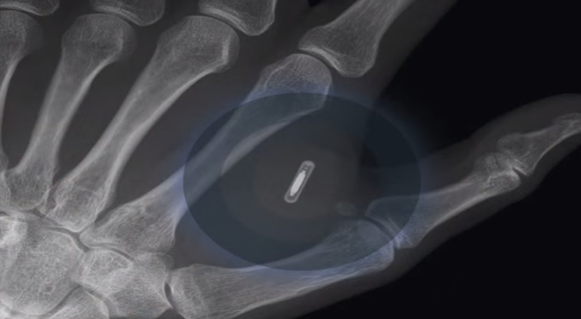 Man Implants Microchip in Hand Ahead of iPhone 6 Release  (((VIDEO)))