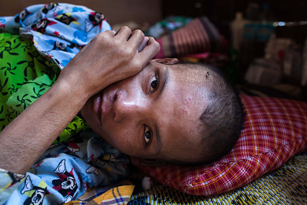World Aids Day 2014  Heartbreaking Photos Of Patients At An Hiv Hospice In Myanmar