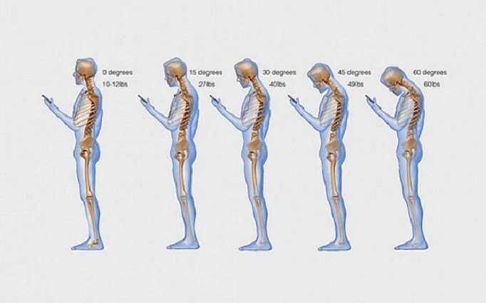 smartphone posture tech neck