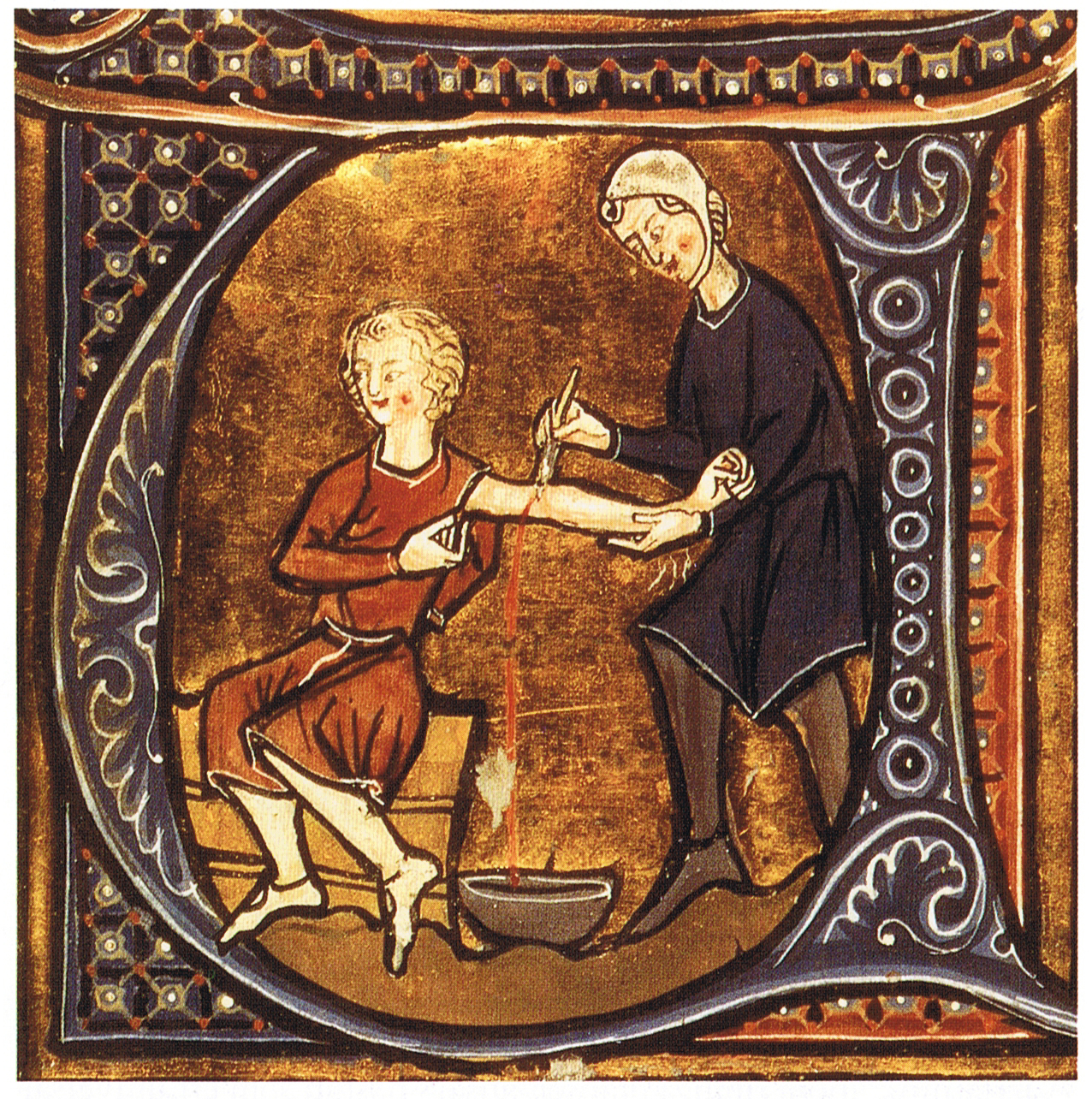 Bloodletting, as depicted in illustrated form (CC)