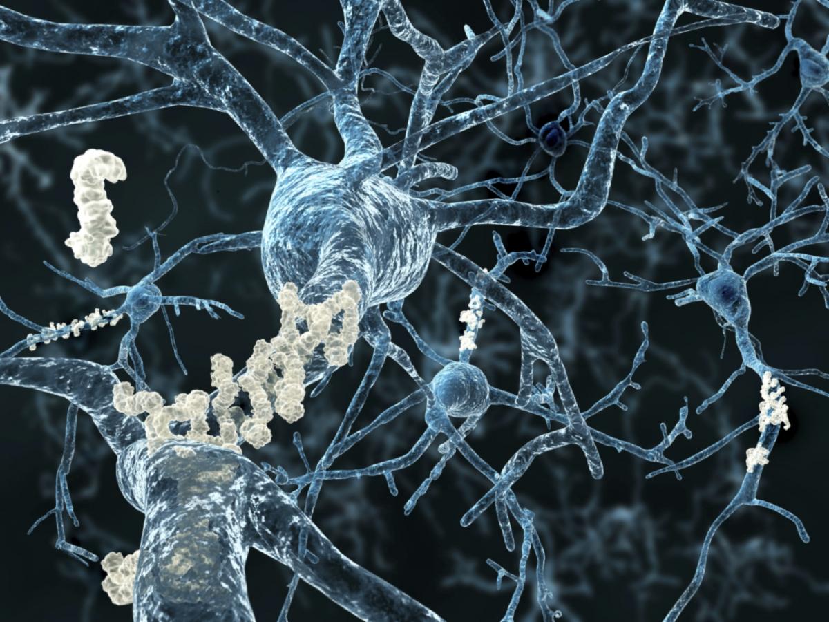 US FDA-approved anti-cancer drug bexarotene to prevent onset of Alzheimer's