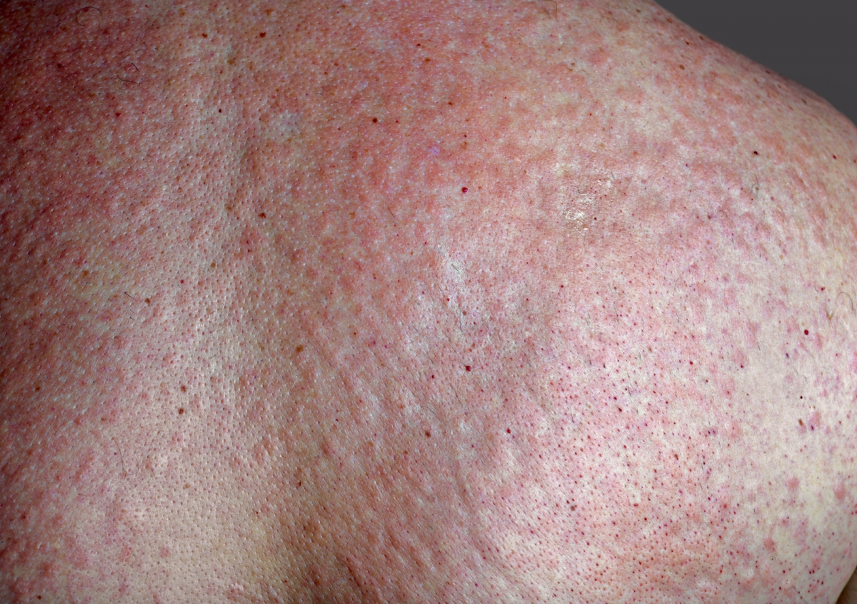 rash vibration hives