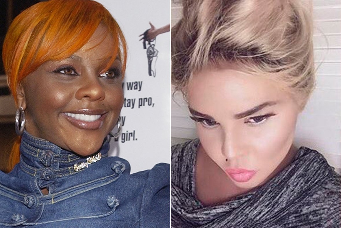 What has happened to Lil' Kim's face? Plastic surgeons ...