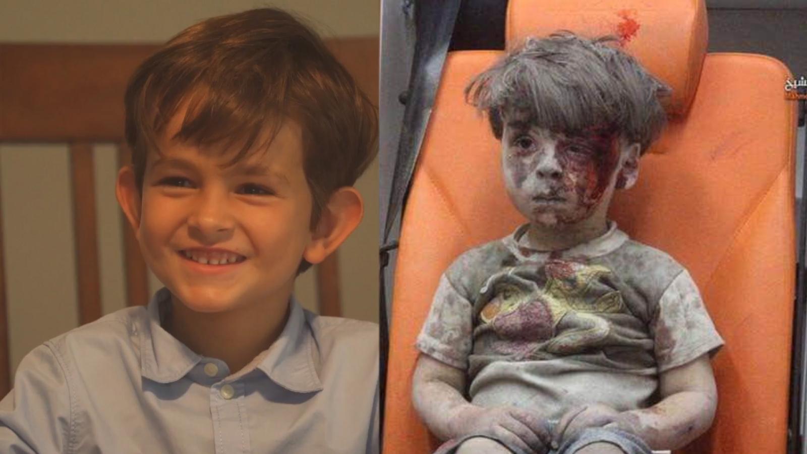 Bring omran daqneesh to the us pleads 6 year old boy to obama ccuart Choice Image