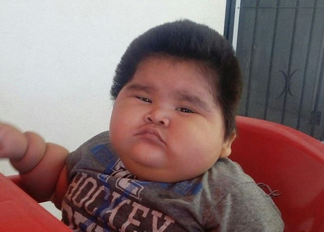 World S Fattest Baby Weighs Over 4 Stone At Just 10