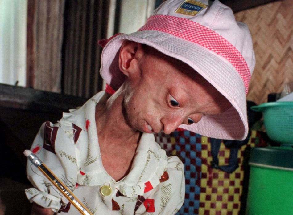 an informative article on progeria or hutchinson gilford syndrome Hutchinson– gilford progeria syndrome is a rare, sporadic, autosomal dominant, fatal childhood disease first described by dr jonathan hutchinson in 1886[1, 2, 3] dr.