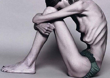foto chica bulimica:
