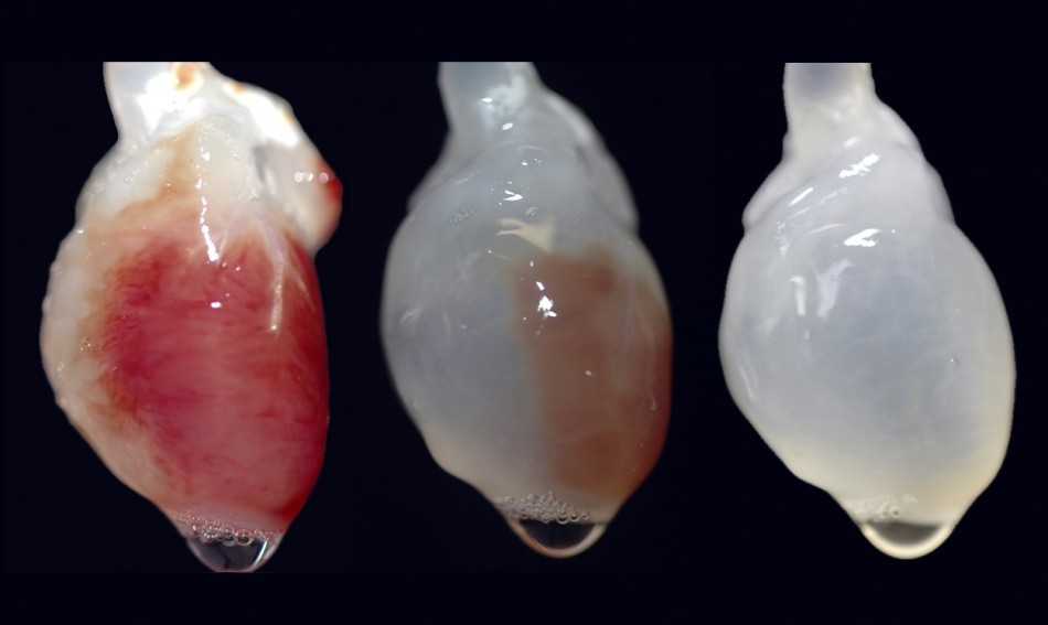 Lab Grown Organs Custom-made Organs to be Grown