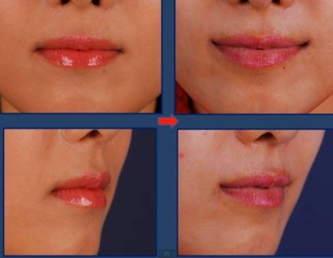Perma Smile Hits Korea Disturbing Images Show Lips Curled