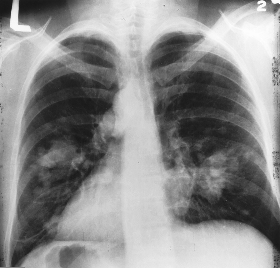 england and lung cancer Ethnicity and lung cancer background differences between ethnic groups in the incidence of lung cancer have been shown in england for the broad white, black,.