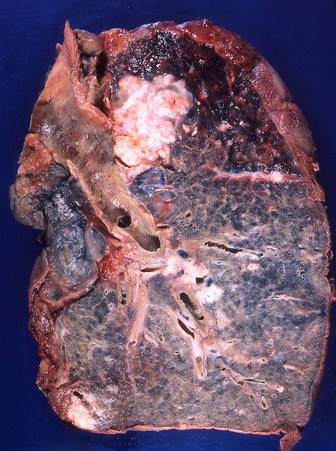 england and lung cancer Lung cancer includes non-small cell, small cell, mesothelioma, thymoma and  neuroendocrine tumours the royal marsden offers a full range of lung cancer.
