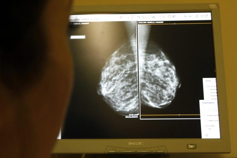 Woman's mammogram