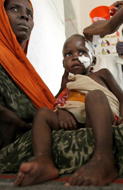 A malnourished child is fed using a naso-gastric tube at the therapeutic feeding centre run by Action contre la faim