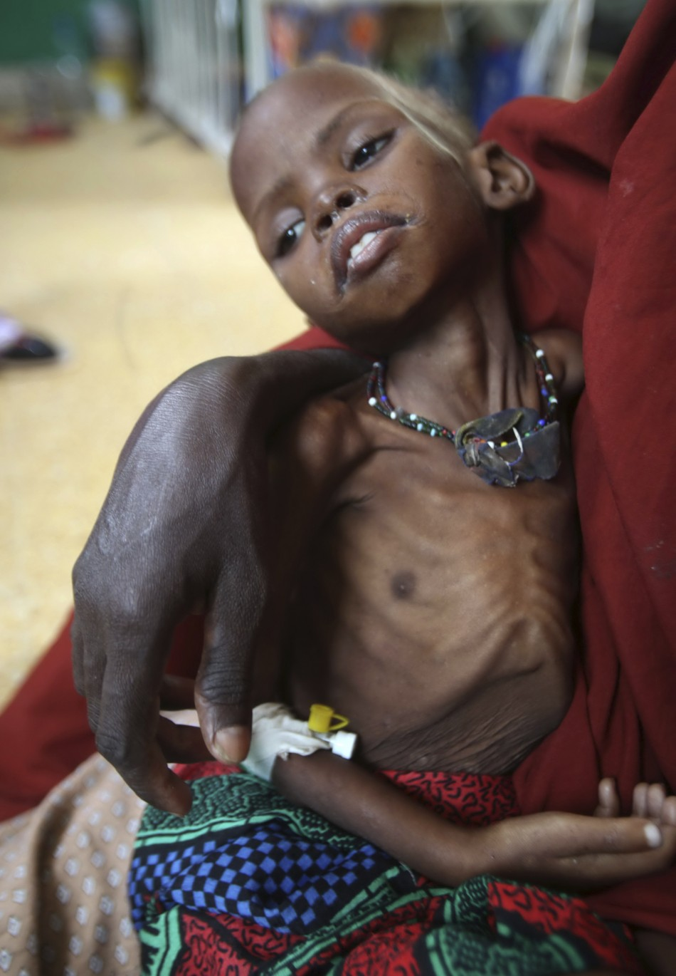 Millions of Malnourished Children in Horn of Africa are at Risk of Dying