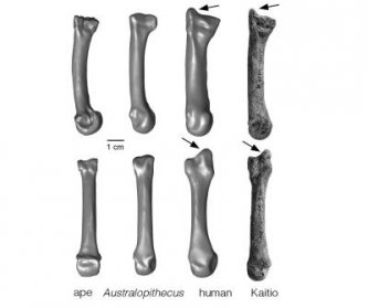 Human hand bone