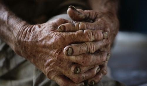 Million dollar bet against aging