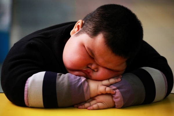 Almost a Billion People in Developing World are Obese