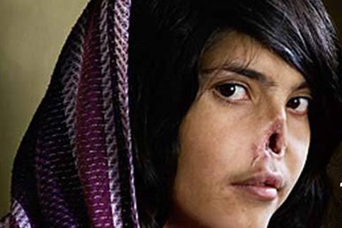 Bibi Aisha mutilation
