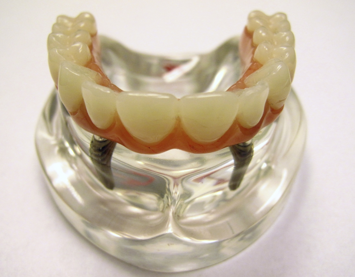 A display model of a dental implant is seen at the Nobel Biocare manufacturing facility in Yorba Linda, California.