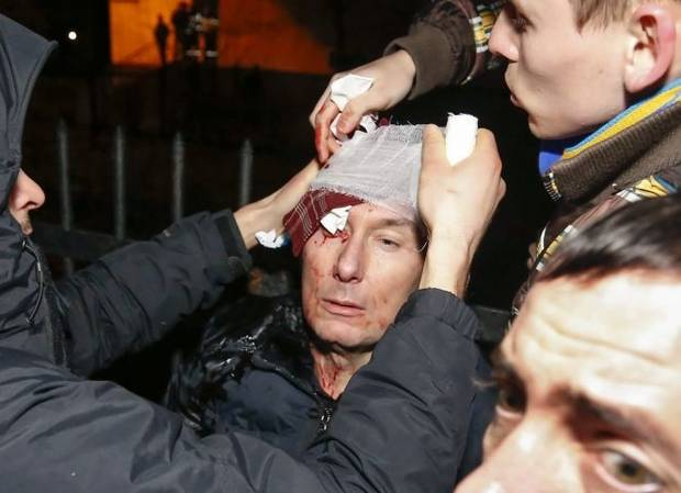Yuri Lutsenko receives treatment after reportedly being beaten by police.