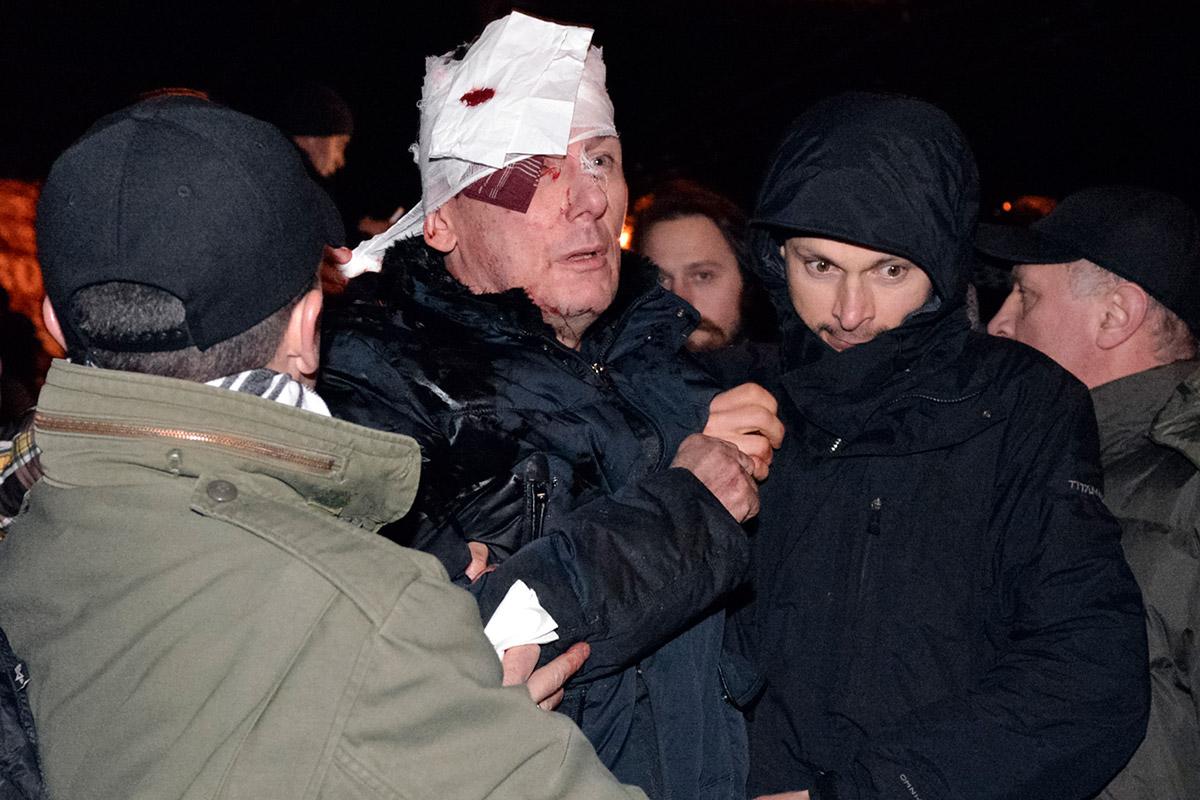 square injured politician