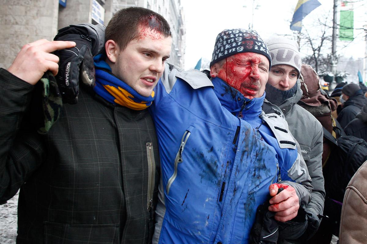 bleeding man