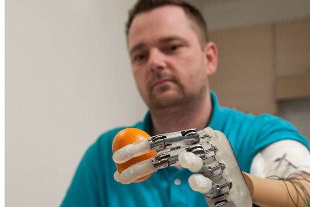 Scientists have invented a bionic hand that allows amputees to feels textures and shapes