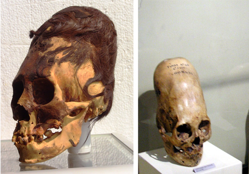 Paracas Elongated Skulls - were they human?