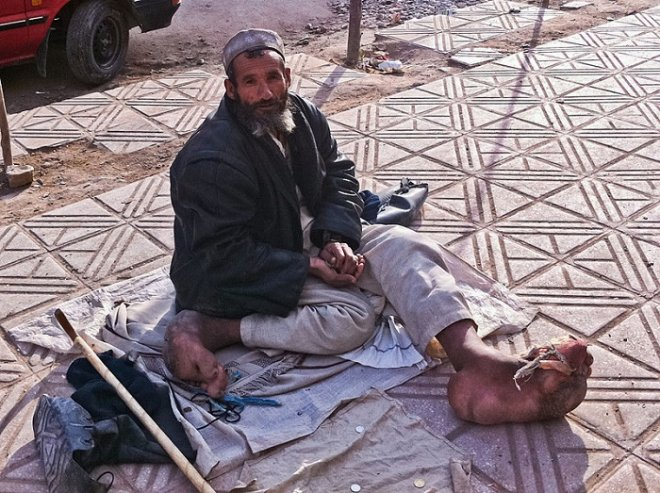 According to the WHO, around 65% of elephantiasis sufferers live in the Southeast Asia, while 30% live in Africa.