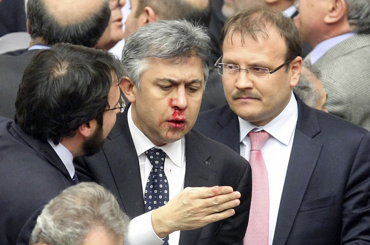 Ali Ihsan Kokturk from the main opposition Republican People's Party (CHP) was injured during a mass brawl at the Turkish parliament