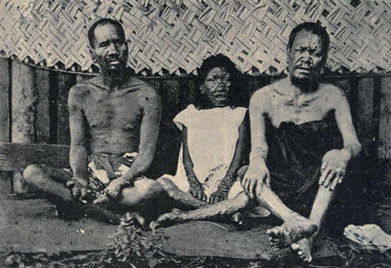 Lepers in Tahiti in 1898