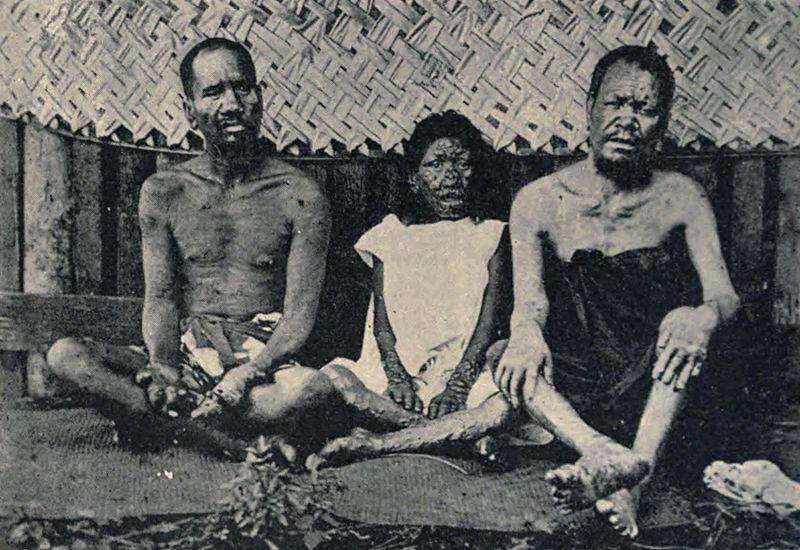 Lepers in Tahiti in 1898