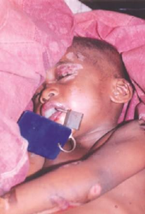 Nigeria: Father Padlocks Son's Mouth and Kills him as he was 'Evil Child'