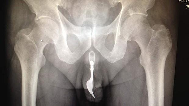 Stuck inside vagina