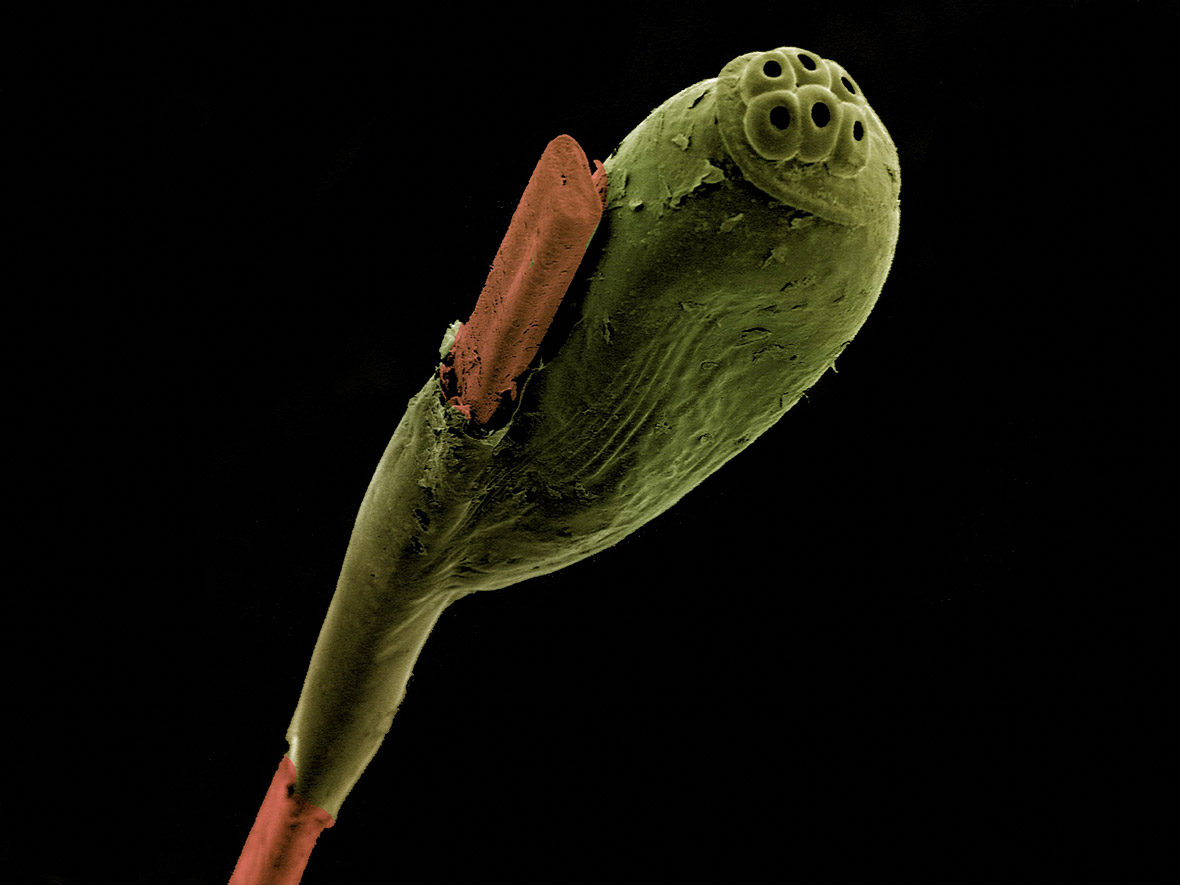 Head louse egg attached to a strand of hair, SEM