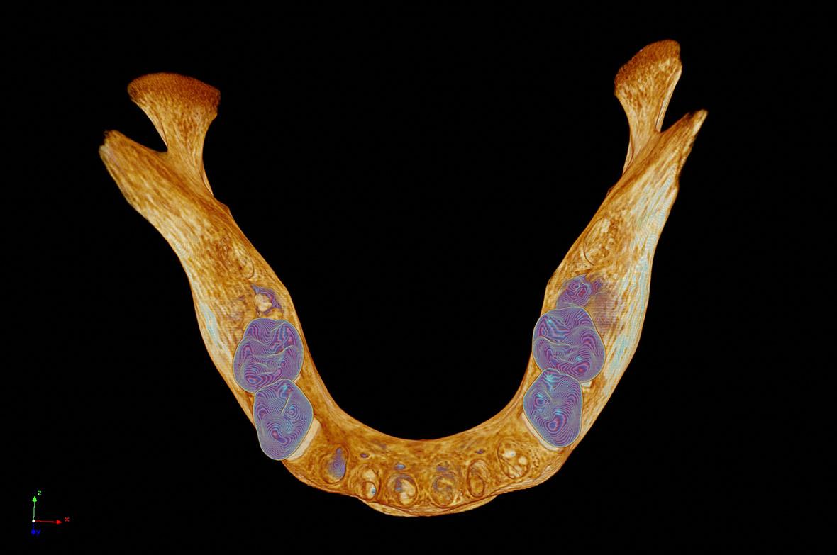 Medieval human mandible lower jawbone