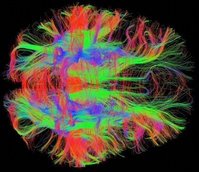 Nerve fibres in a healthy adult human brain, MRI