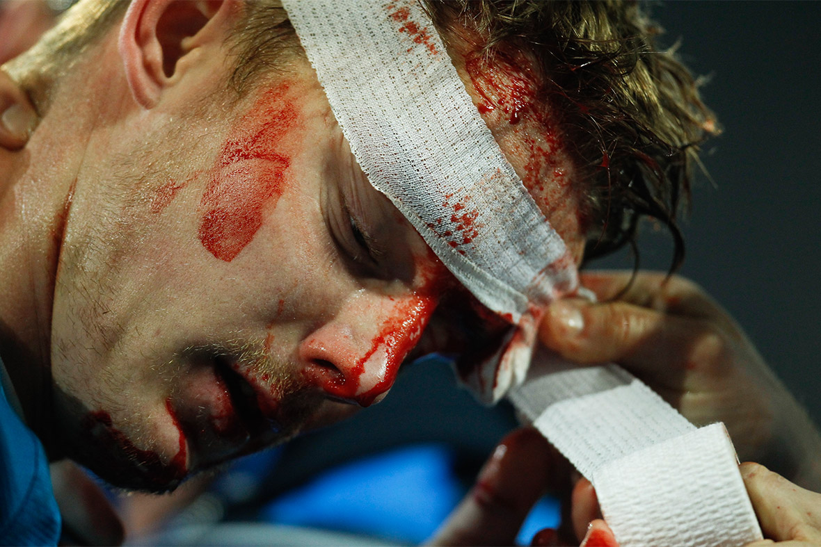 footballer injured