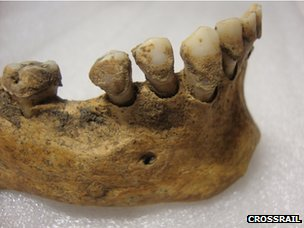 The 14th-century Black Death victims' teeth contain DNA from the plague bacterium Yersinia pestis