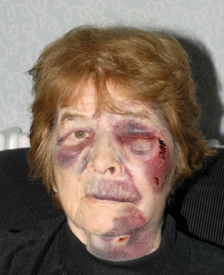Sabina Harrison in robbery attack in Leeds