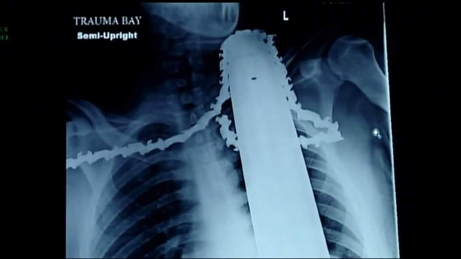 X Ray shows in graphic detail how the chainsaw embedded itself in Jame Valentine's upper body