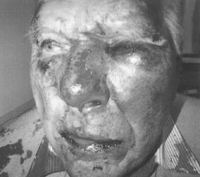 Attack in Hucknall on Pensioner