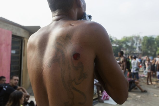 A resident of Telerj slum shows what he claims is a rubber bullet wound
