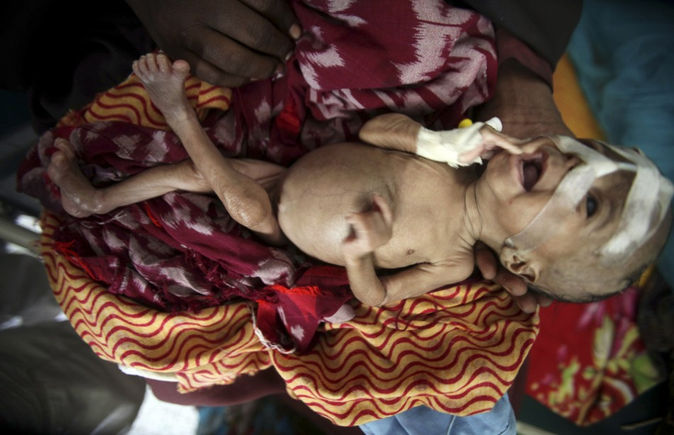 An internally displaced woman holds her malnourished son at the Banadir hospital in Somalia's capital Mogadishu