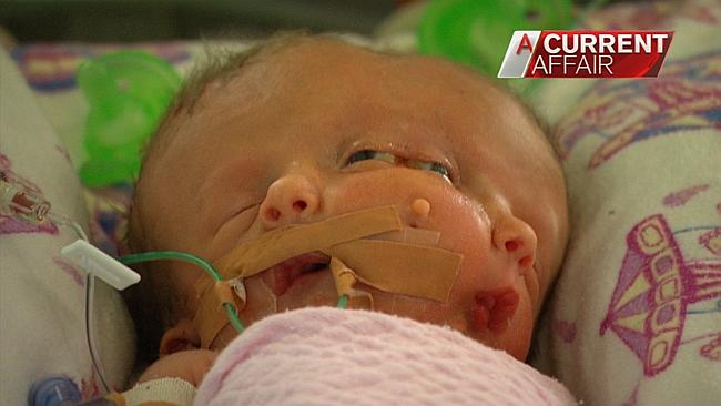 Sydney: Miracle Twin Babies Faith and Hope Born with Two Faces on One Skull