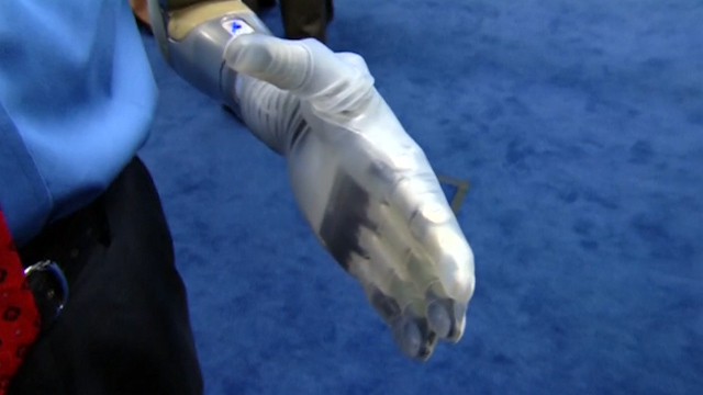 FDA Approves New Robotic Arm for Amputees